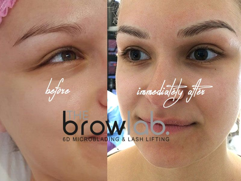 Brow Lab Aimee Before And After